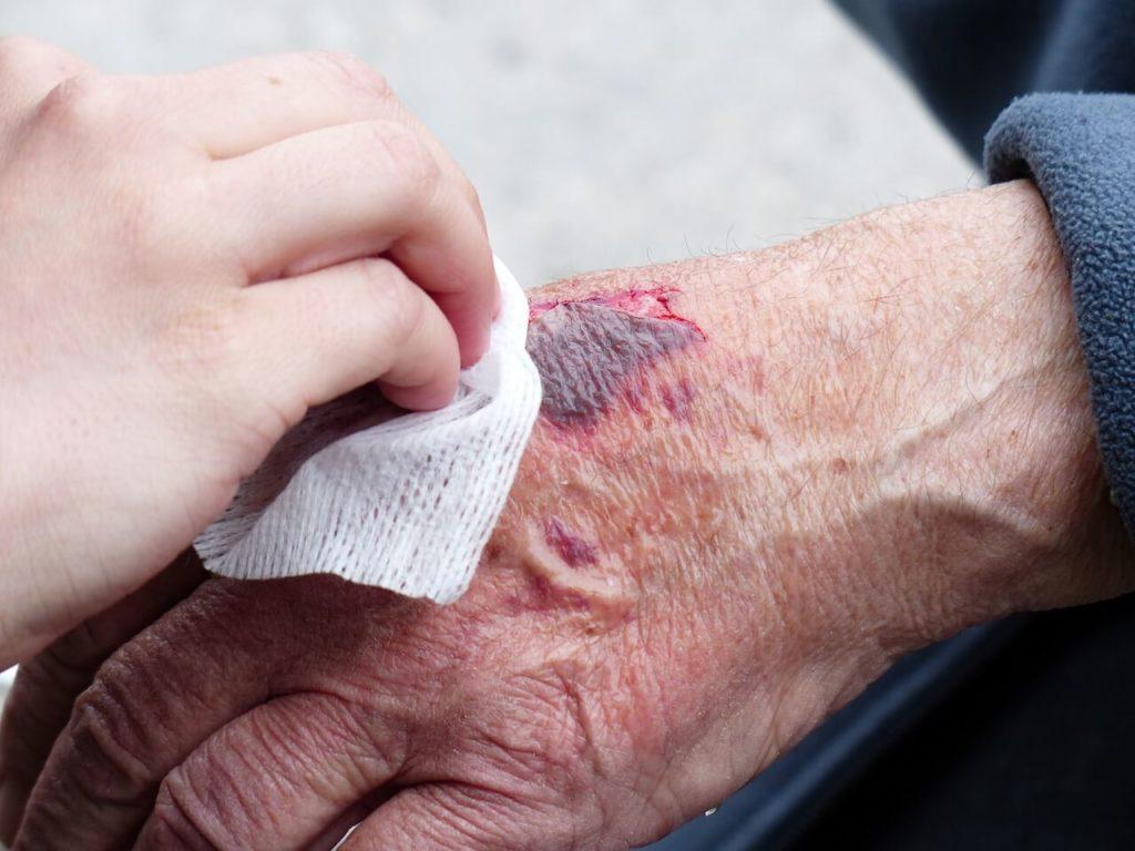 Co zrobić by rany szybciej się goiły?